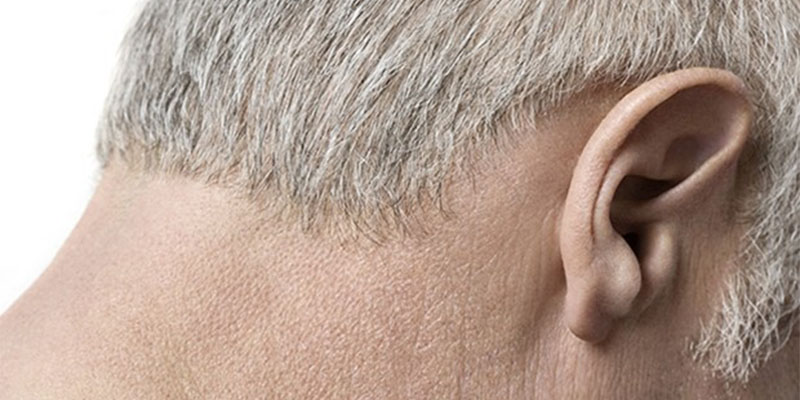 Can What You Eat Cause Excessive Earwax?